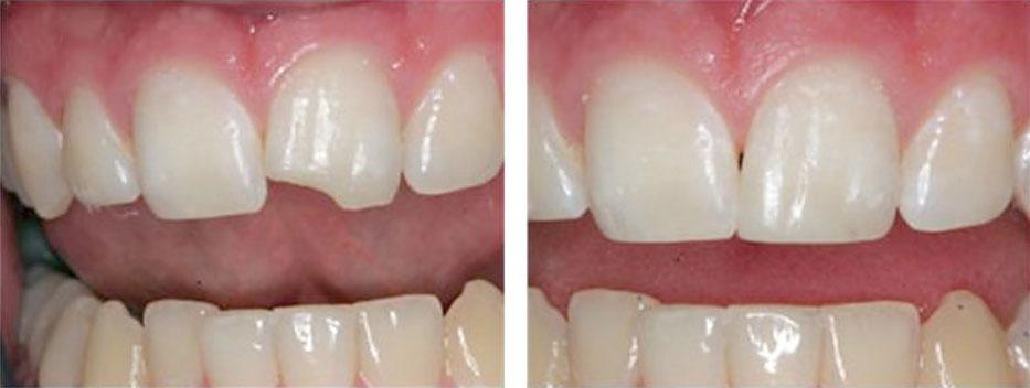 Временная пломба можно ли чистить зубы